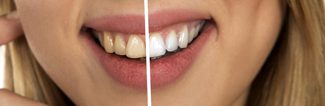 tartes dents jaunes et blanches