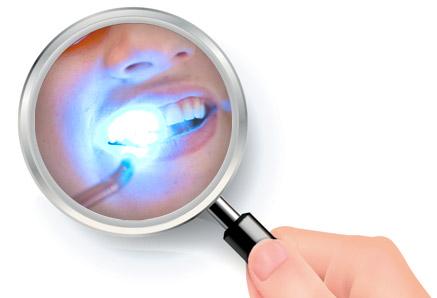 blanchiment laser